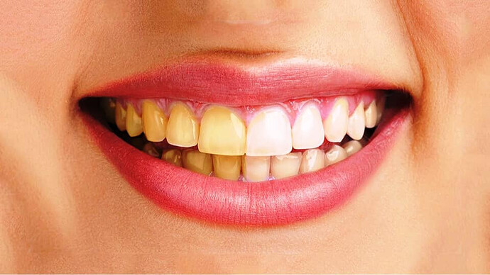 Vàng Răng sau khi Niềng Răng