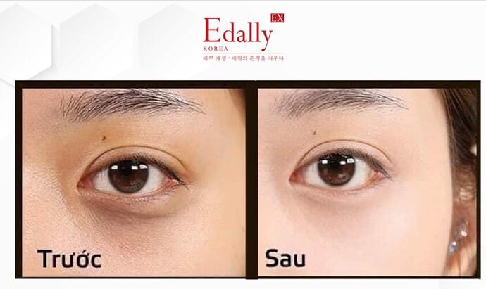 Kem dưỡng mắt Edally Ex Rejuvenating Recovery.jpg